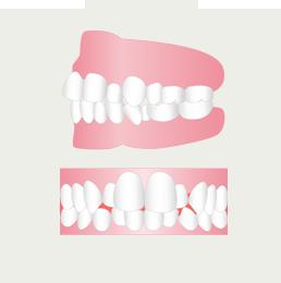 デコボコな歯並びを治したい(イメージ)