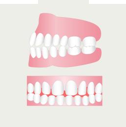 すきっ歯を治したい(イメージ)