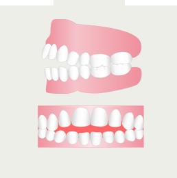 上下の歯列が閉じないのを治したい(イメージ)