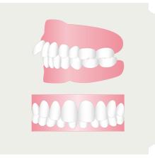 出っ歯を治したい(イメージ)