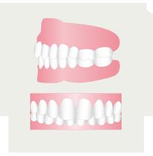 上の歯列が覆いすぎて下の歯列が見えないのを治したい(イメージ)