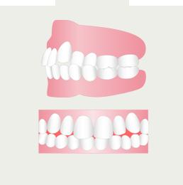 八重歯を治したい(イメージ)